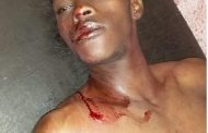 Assoumani Azali a déclenché un génocide à Anjouan